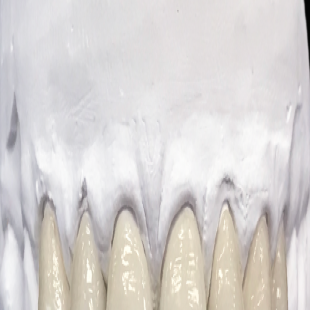 dental-prosthetic-services-inc